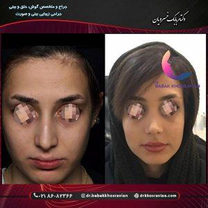 اقدامات قبل از عمل بینی