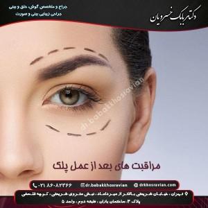 مراقبت های بعد از عمل پلک