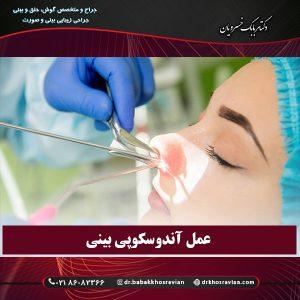 عمل آندوسکوپی بینی