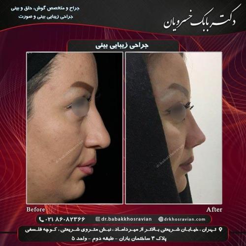 عمل زیبایی بینی 6